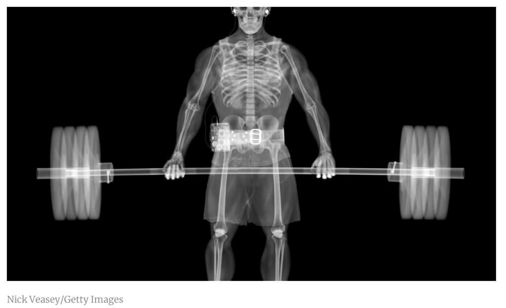 exercise and bone-mass