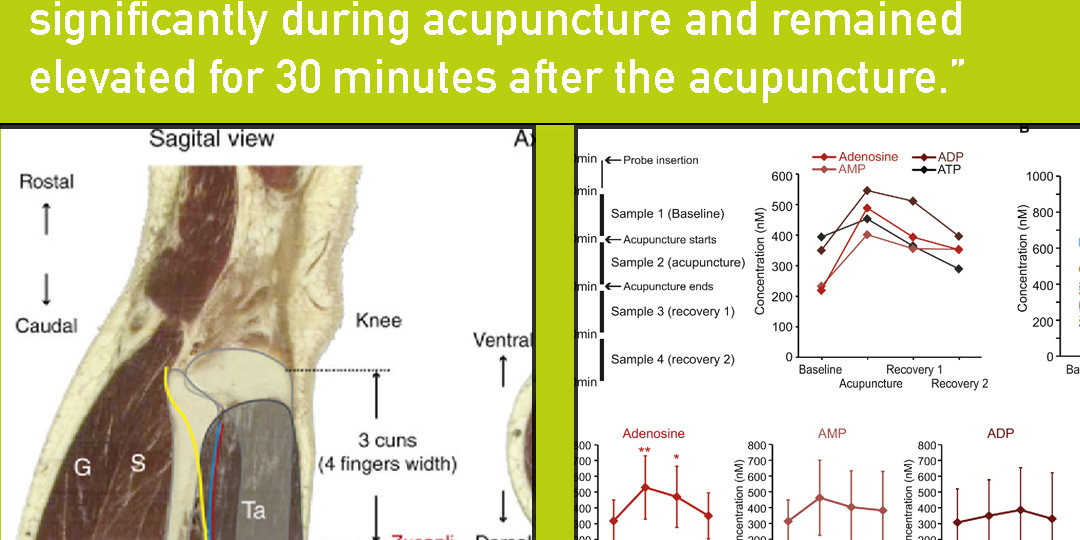 adenosine and acupuncture